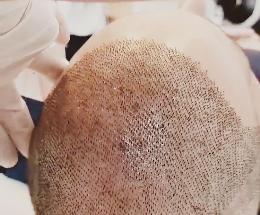 transplantes-de-pelo-en-turquia-estambul