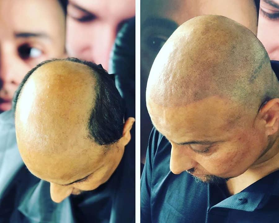 transplantes-de-pelo-en-turquia